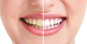 zoom-teeth-whitening-banner